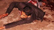 অপারেশন টোয়াইলাইট অভিযানে গোয়েন্দা প্রধান আহত,ঢাকায় প্রেরণ