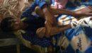 রাজনগরে ভুল চিকিৎসায় পায়ের আঙ্গুল কাটা গেল যুবকের